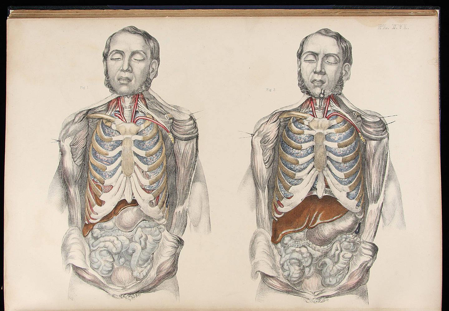 Medical Anatomy Or Illustrations Of The Relative Position And